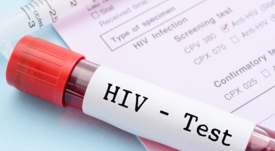 Около 1,7 миллиона человек заразились ВИЧ в 2018 году