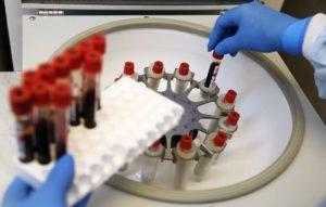Почти 320 тыс. ВИЧ-инфицированных умерли в России за 31 год