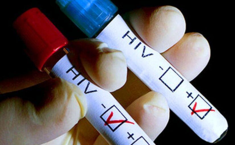 Утверждены новые правила обязательного освидетельствования на ВИЧ